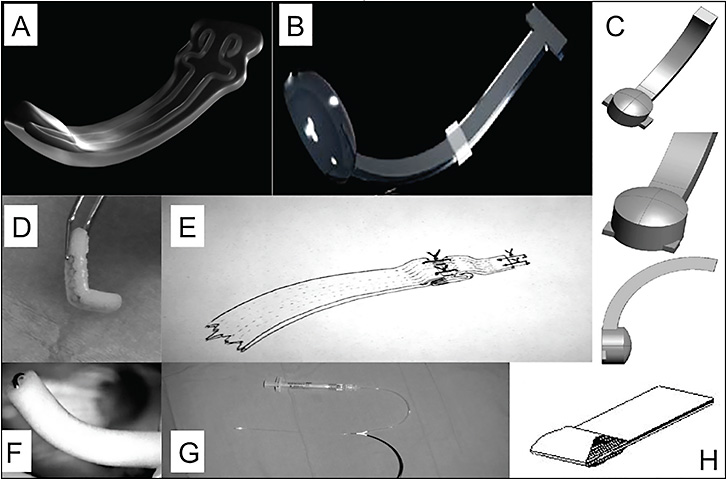 Figure 5. Types of macular buckles (MB). Ando plombe MB (Ondeko Corp), solid silicone with titanium wire (A); AJL MB, polymethylmethacrylate, PMMA (B); Adjustable MB, solid silicone (C); L-shaped MB, silicone sponge with titanium wire (D); donor sclera (E); L-shaped MB, silicone sponge with stainless steel wire (F); suprachoroidal catheter with hyaluronic acid (G); T-shaped MB, solid silicone (H).