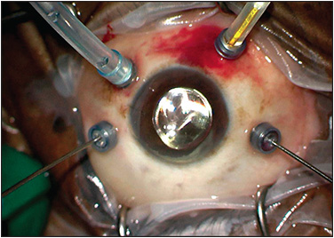 Figure 2. Setup for bimanual vitrectomy with the DORC 25-gauge single fiber chandelier.