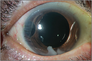 Figure 1. Residual lens cortical material in the anterior chamber abutting the cornea after anterior vitrectomy and placement of an anterior-chamber intraocular lens.