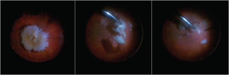 Figure 3. A large posteriorly dislocated lens nucleus (left) can be disassembled more efficiently with use of a fragmatome (center, right).