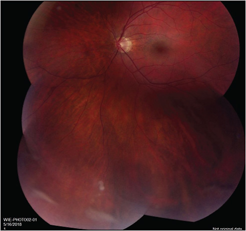 Figure 1. Vitreous snowballs, left eye.