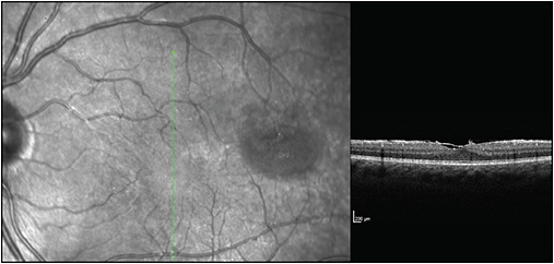 Figure 2. Epiretinal membrane, left eye.