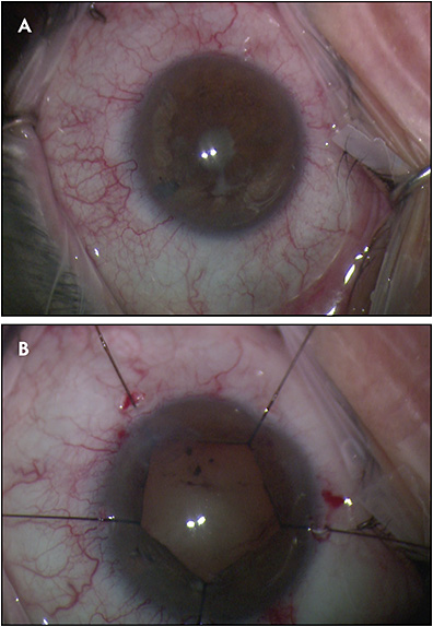 Figure 4.  Intraoperative image of cataract, pupillary membrane, and extensive posterior synechiae, left eye (A). Same eye following synechiolysis, peeling of pupillary membrane, and pupil stretching with iris hooks (B).