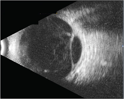 Figure 5. B scan of traction retinal detachment, left eye.
