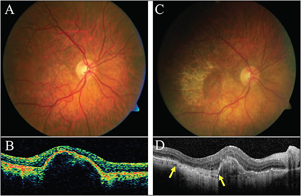 Figure 4. A 70-year-old female with RPE tear. The patient has history of non-nAMD and presented with worsening vision in OD after uncomplicated cataract surgery. BCVA was 20/100, and exam was consistent with soft drusen (A) and associated serous PED (B). The patient underwent multiple intravitreal injections of bevacizumab and, 4 years into the course, she developed an RPE tear, observed as an area of rolled-up hyperpigmented RPE juxtaposed to the lighter pigmented area without RPE (C). SD-OCT demonstrated an abrupt discontinuity of the RPE layer at the site of the rip (D, yellow arrows).