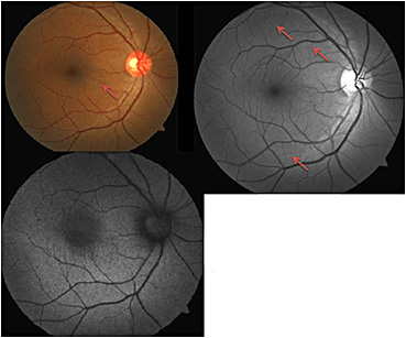 Retinal Physician - A Case of Particulate Retinopathy