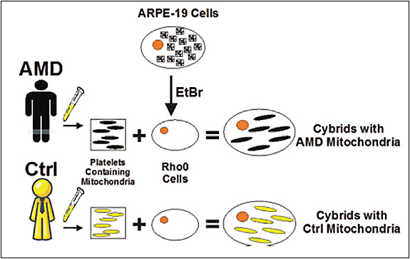 Figure 1. Schematic drawing for creation of transmitochondrial cybrids by fusion of platelets (originating from AMD or control subjects) with RPE cells devoid of mitochondrial DNA.