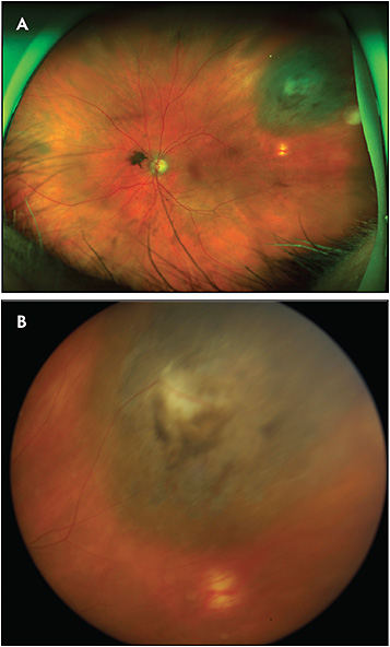 Figure 3. Optos ultrawidefield fundus photography (A) is able to capture nearly the entirety of this peripheral treated choroidal melanoma and its relative location to the posterior pole. The standard fundus photograph (B) cannot capture as much of the lesion and has a poorer focus, but it reveals the lesion in true color.