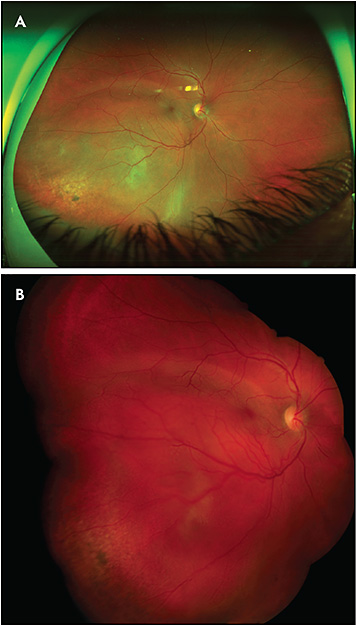 Figure 4. A large circumscribed choroidal hemangioma. The Optos ultrawidefield image (A) shows the majority of the tumor borders but produces a potentially misleading false color. The standard fundus camera (B) is able to create a montaged image which has a narrower field but shows the characteristic true (red) color of this lesion.