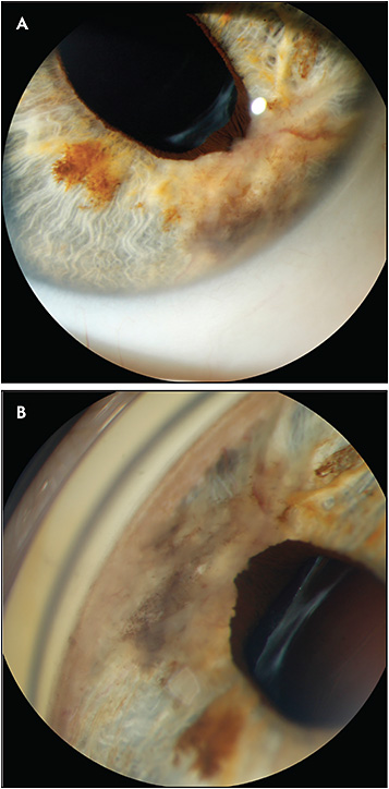 Figure 5. Slit-lamp photographs of an amelanotic iris nevus with visible intratumoral vessels, ectropion uvea and no angle involvement that has been stable for many years. Image B is captured with contact gonioprism.