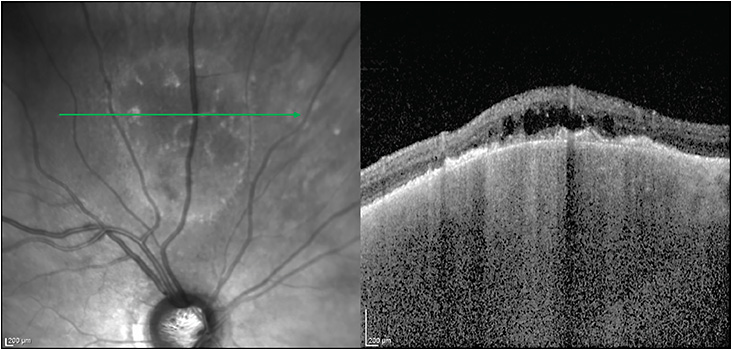 Figure 8. Standard OCT of a long-standing choroidal nevus revealing signs of chronicity, including retinal pigment epithelial disruption, outer retinal atrophy, and cystoid retinal edema.
