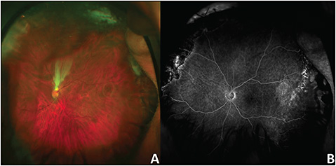 Figure 2. Rhegmatogenous retinal detachment in an adult with myopia and prematurity. Color fundus photo shows development of a stretch hole after scleral buckling with pars plana vitrectomy (A). Fluorescein angiogram shows temporal late vascular leakage (B).