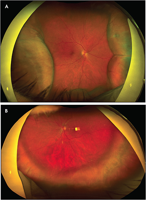 Figure 2. Widefield color photos (Optos) of the right (A) and left (B) eyes demonstrating 360-degree choroidal detachments.