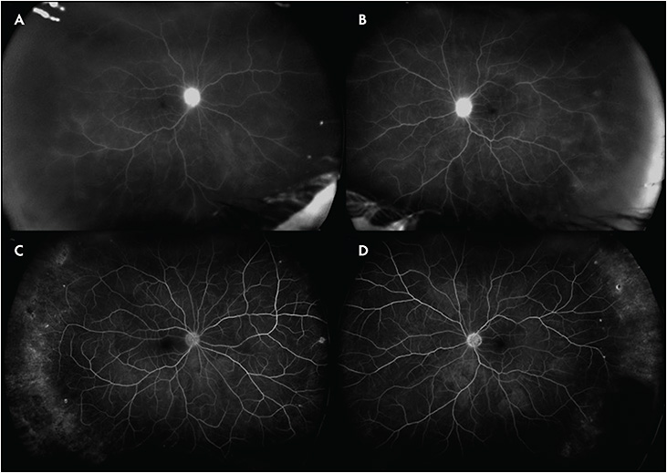 Figure 3. Late-phase widefield FA (Optos) of the right (A) and left (B) eyes on presentation demonstrating disc and diffuse retinal leakage throughout the fundi. Three months following topical difluprednate therapy with a slow taper, the late phase widefield FA of the right (C) and left (D) eyes revealed resolution of both disc and diffuse retinal leakage.