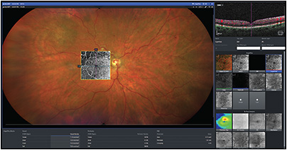The IDI display showing results in a case of branch retinal vein occlusion.