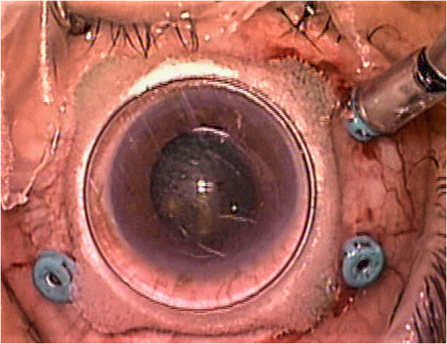 Figure 1. Example of a contact macular lens with stabilizing feet. It is important to center the lens over the cornea to optimize the view.