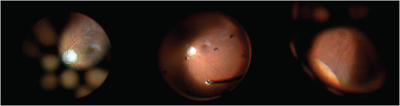 Figure 2. Wide-angle viewing systems allow for uninhibited visualization of the posterior segment and retinal periphery. These photos were taken during epiretinal membrane removal. From left to right, the posterior pole and holes in the backplate are visible; core vitrectomy is performed, followed by scleral depression.