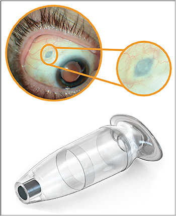 Figure 1. The PDS implant in position, viewed externally (top). The small circular silicone septum can be seen with magnification. A close-up of the implant is shown in the bottom image.