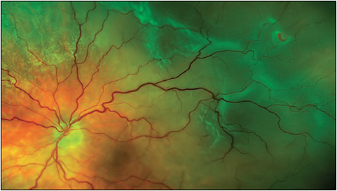 Figure 1. Superotemporal extrafoveal rhegmatogenous retinal detachment associated with horseshoe retinal tears at the 1:45 and 2 o'clock meridians in the vitreous base region.