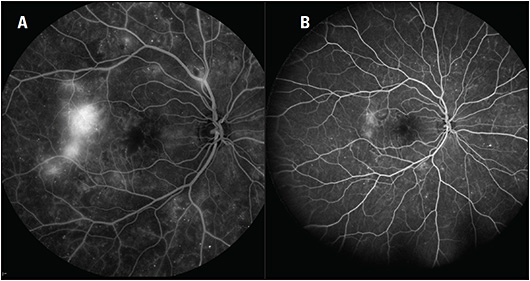 Figure 1. Compared with 55° fluorescein angiography (A), widefield fluorescein angiography (B) provides a more accurate assessment of the extent of proliferative diabetic retinopathy in this patient.
