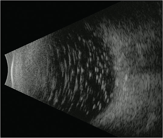 Figure 4. B-scan ultrasound of emulsified oil after silicone oil removal. Small oil droplets remained after multiple fluid-air exchanges.