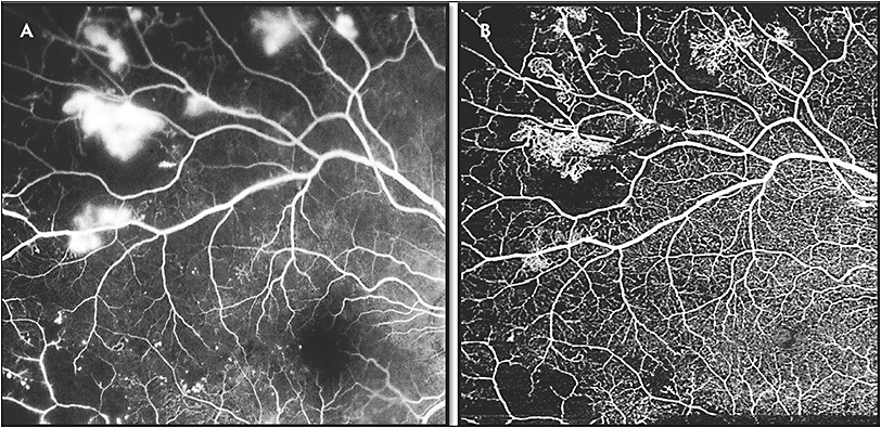 Figure 4. Fluorescein angiography showing peripheral leakage consistent with neovascularization (A). Swept-source optical coherence tomography angiography (Plex Elite 9000; Carl Zeiss Meditec) showing neovascularization in the same areas as seen on fluorescein angiography (B).