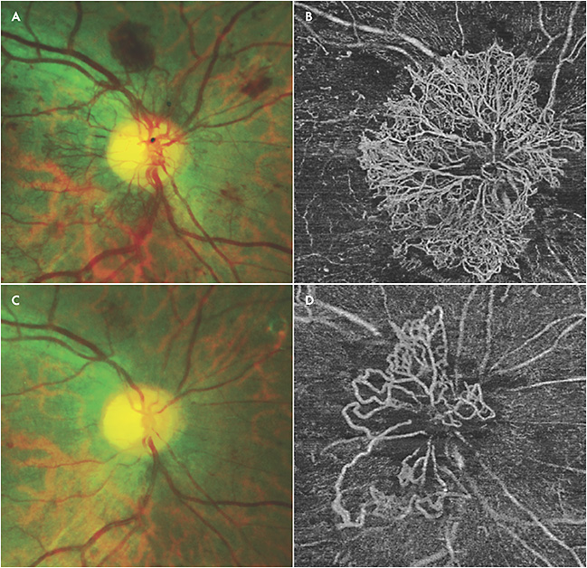 Figure 5. Fundus photo of neovascularization of the disc (A). Swept-source optical coherence tomography angiography (Plex Elite 9000; Carl Zeiss Meditec) showing dramatic neovascularization of the disc in the same eye (B). Fundus photo showing regression of neovascularization of the disc after panretinal photocoagulation and anti-VEGF therapy (C). Swept-source optical coherence tomography angiography showing some regression but persistence of neovascularization of the disc in the same eye (D).
