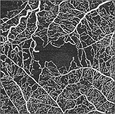 Figure 8. Swept-source optical coherence tomography angiography (Plex Elite 9000; Carl Zeiss Meditec) superficial retina slab of 3 mm x 3 mm scans showing areas of reduced capillary perfusion density in a patient with proliferative diabetic retinopathy.