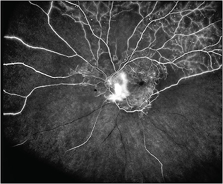 Figure 1. Asymmetric ultrawidefield fluorescein angiogram (Optos California) of a 54-year-old male with proliferative diabetic retinopathy demonstrating widespread nonperfusion and neovascularization.