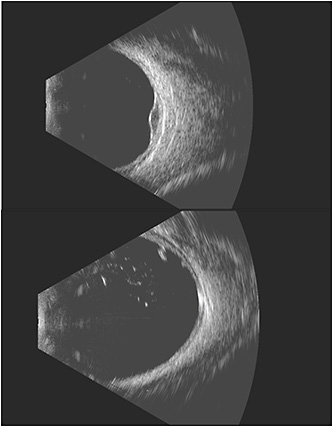 Figure 1. Choroidal melanoma in the left eye using the Ellex Eye Prime posterior 18 MHz probe (A) and retinal tear with anterior vitreous opacities in the left eye using the Ellex Eye Prime posterior 18 MHz probe (B).