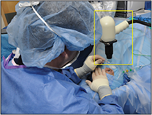 Intraoperative OCT Today and Tomorrow: The PIONEER Study Two-year Results and Beyond