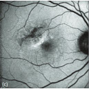 Fundus Autofluorescence in Retinal Disease: A Review and Perspectives