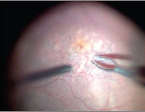 Visualization in Vitrectomy: An Update