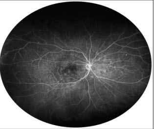 Ultrawidefield Fluorescein Angiography in the Diagnosis of Diabetic Retinopathy
