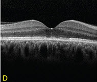 En Face OCT Imaging in Retinal Disorders