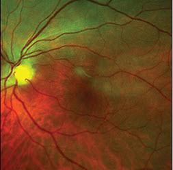 Tips for the Treatment of Uveitis