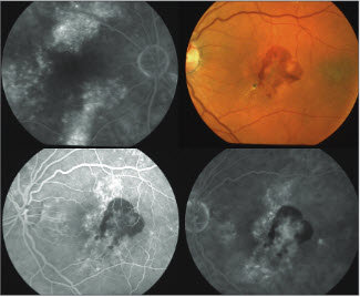 Central Serous Chorioretinopathy: Treatment Timing and Options