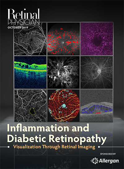 Inflammation and Diabetic Retinopathy