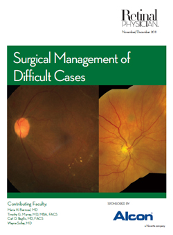 Surgical Management of Difficult Cases