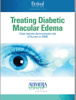 Treating Diabetic Macular Edema
